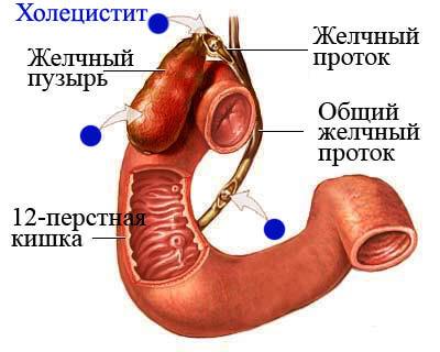 Можно ли откосить от армии с гастритом: хронический, гастродуоденит, холецистит, берут ли с недовесом